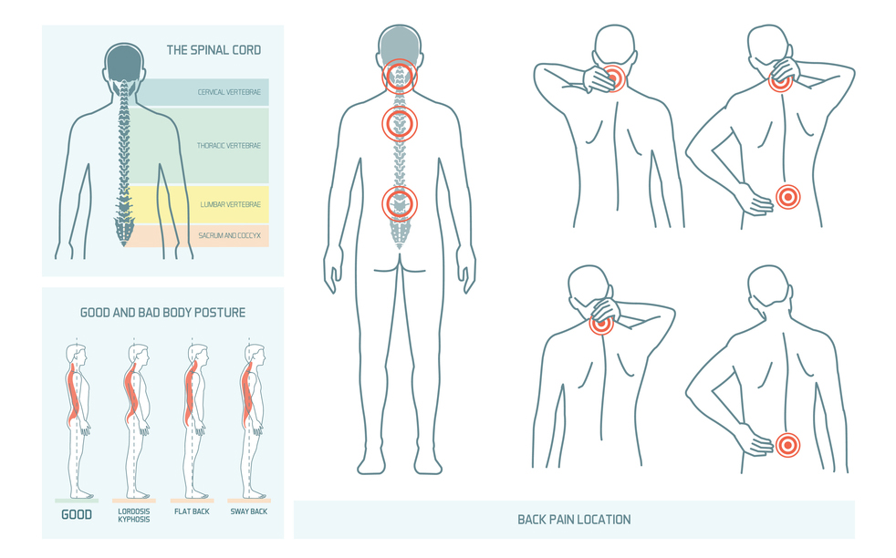 Back pain locations, spinal chord diagram and postures
